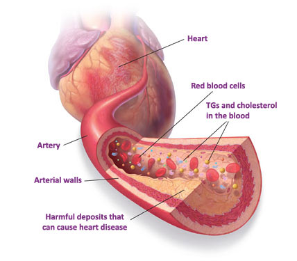 heart_disease_treatment__what_causes_heart_disease___prevent