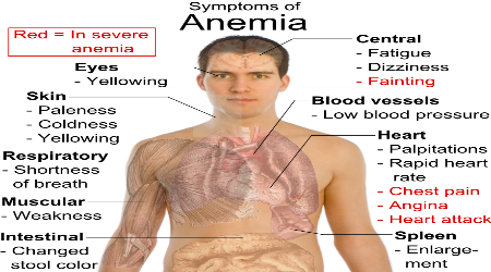 Anemia Iron Deficient